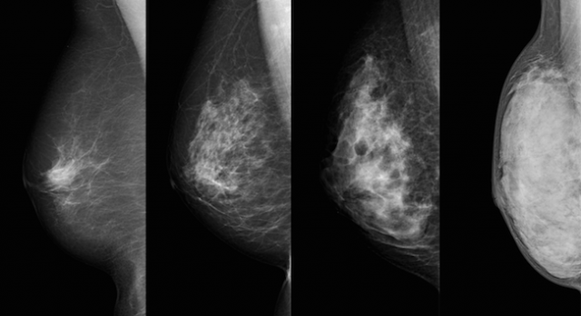 P8下 乳腺濃度4段階
