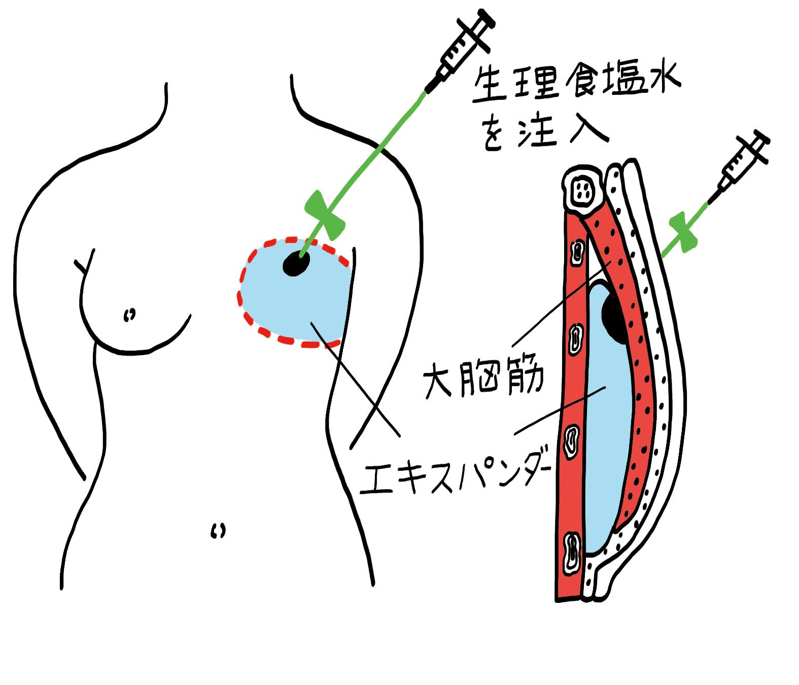 乳房再建手術