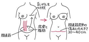 腹直筋皮弁法